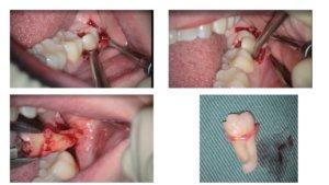 歯科 マイクロスコープ